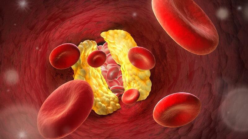 3-D-Grafik mit roten Blutkörperchen, die durch eine Arterie mit einem gelb dargestellten Engpass schweben