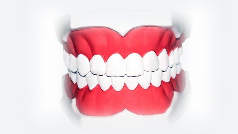 Grafik Gebiss mit weißen gesunden Zähnen