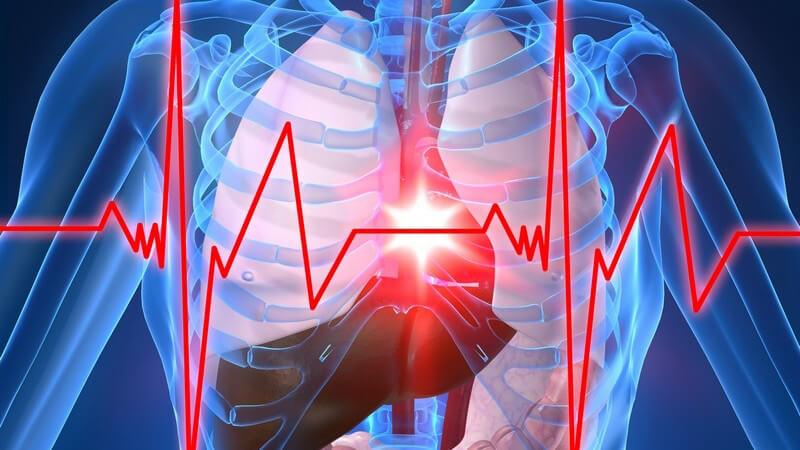 3D Grafik menschlicher Körper mit Herzinfarkt