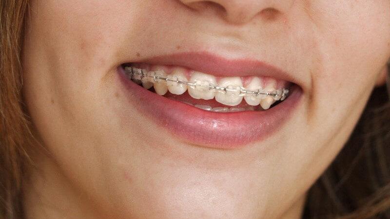 Lächeln eines Mädchens mit fester Zahnspange