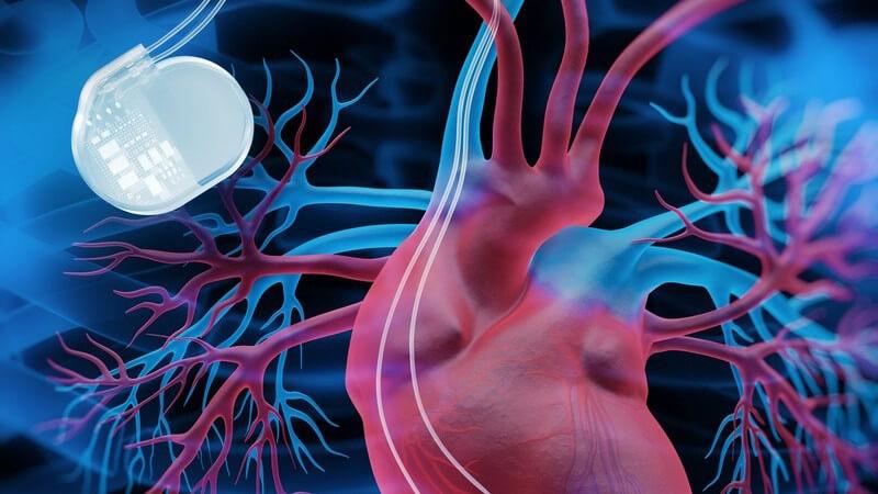 3-D-Grafik eines Herzens mit angeschlossenem Herzschrittmacher