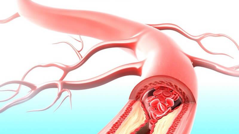 Grafik Arterie mit Verengung - Arteriosklerose