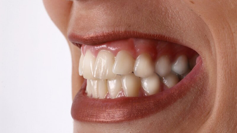 Frauenmund mit geschminkten Lippen, zeigt Zähne, Zähnekirschen