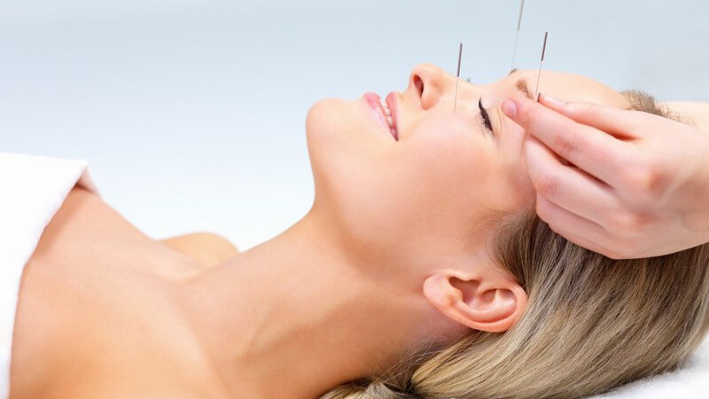 Blonde Frau liegt auf dem Rücken und wird im Gesicht akupunktiert