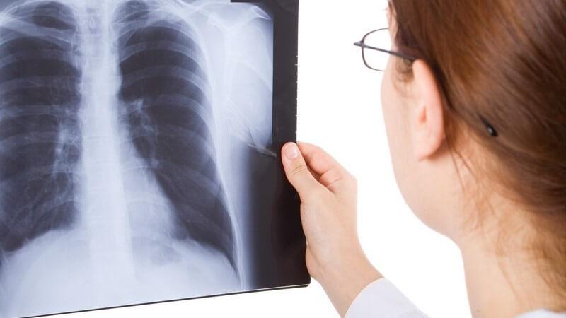 Ärztin mit Brille betrachtet ein Röntgenbild der Lunge