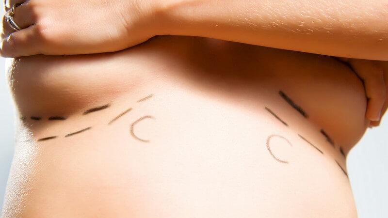 Brustoperation - Eingezeichnete Markierungen unter den Brüsten