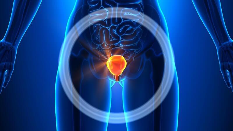 Blaue 3-D-Grafik einer Frau mit leuchtend hervorgehobener und eingekreister Harnblase