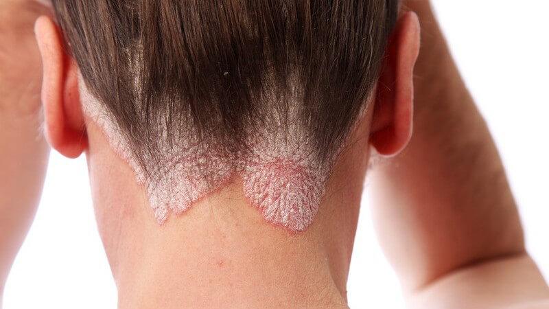 Rückansicht Nacken einer Frau mit Schuppenflecht am Haaransatz