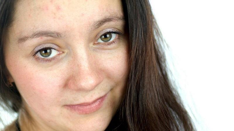 Gesicht einer jungen, dunkelhaarigen Frau, ungeschminkt, mit Problemhaut, Pickeln, Rötungen, unreine Haut, Mischhaut
