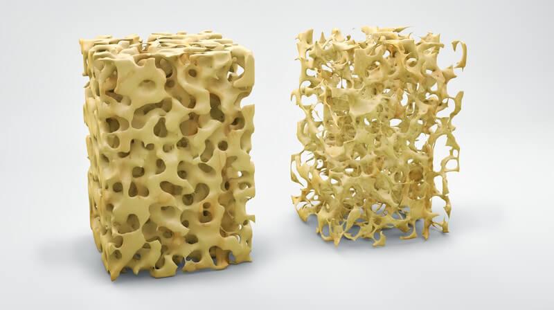 3-D-Grafik der Knochenstruktur mit und ohne Osteoporose