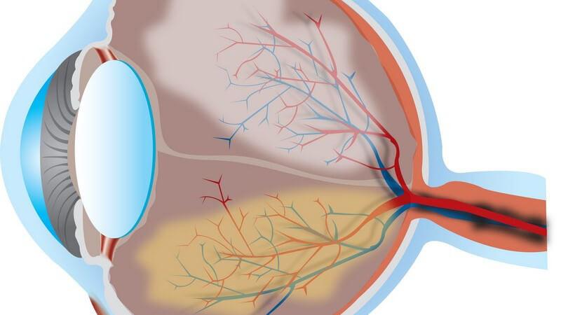 Grafik Seitenansicht menschliches Auge, Querschnitt