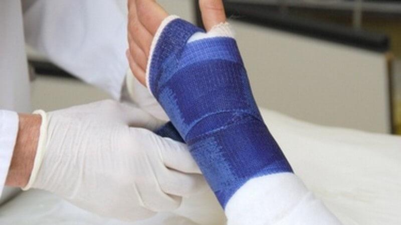 Linker Arm einer Frau mit gebrochenem Handgelenk wird von Arzt verbunden mit blauem Tapeverband, Gips