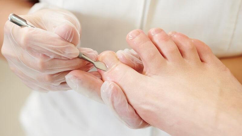 Professionelle Nagelhautpflege am großen Zeh