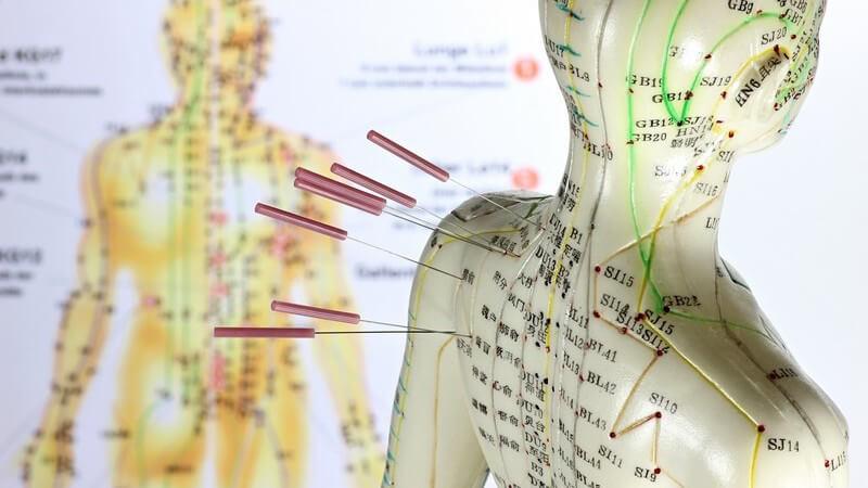 Akupunkturnadeln hängen in Modellpuppe mit aufgezeichneten Meridianpunkten, im Hintergrund auch als Poster
