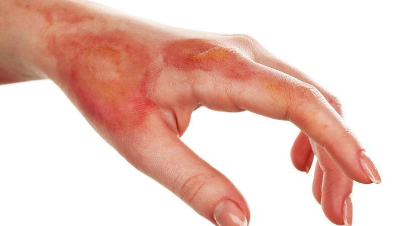 Hand einer Frau mit schweren Verbrennungen vor weißem Hintergrund