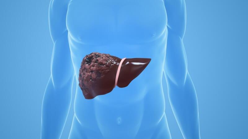 Grafik einer menschlichen Leber mit Leberkrebs