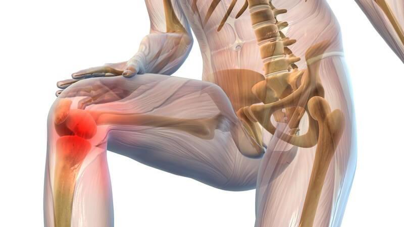 Grafik Körper mit Knieschmerzen