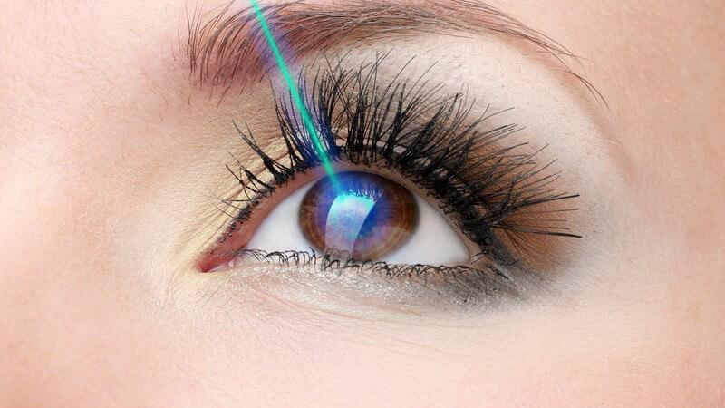 Lasertherapie zur Sehkorrektur - Laserstrahl wird auf Auge gerichtet