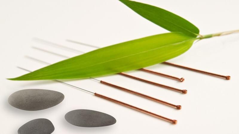 Akupunkturnadeln neben grauen Steinchen und einem grünen Blatt