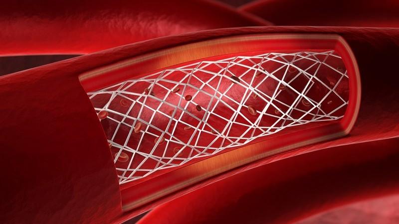 Rote 3-D-Grafik eines Blutgefäßes mit Stent