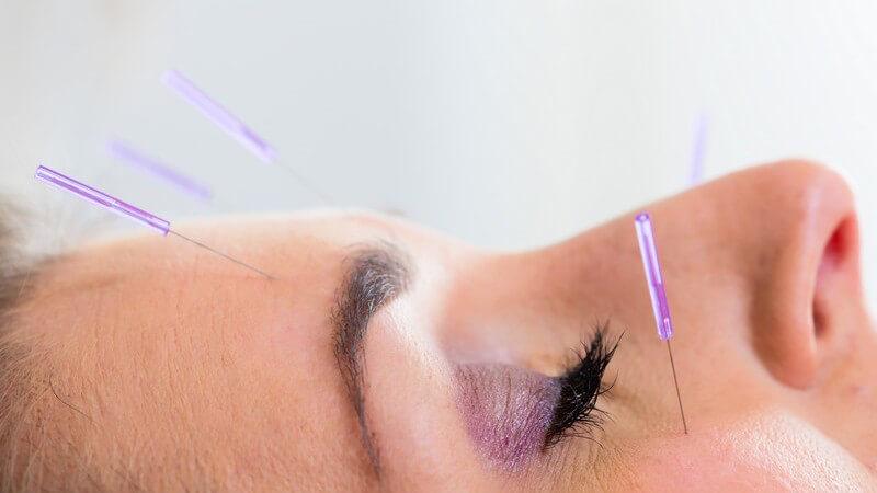 Lila Akupunkturnadeln im Gesicht einer Frau