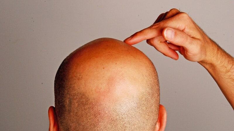 Rückansicht Glatze eines Mannes, er zeigt mit Finger darauf