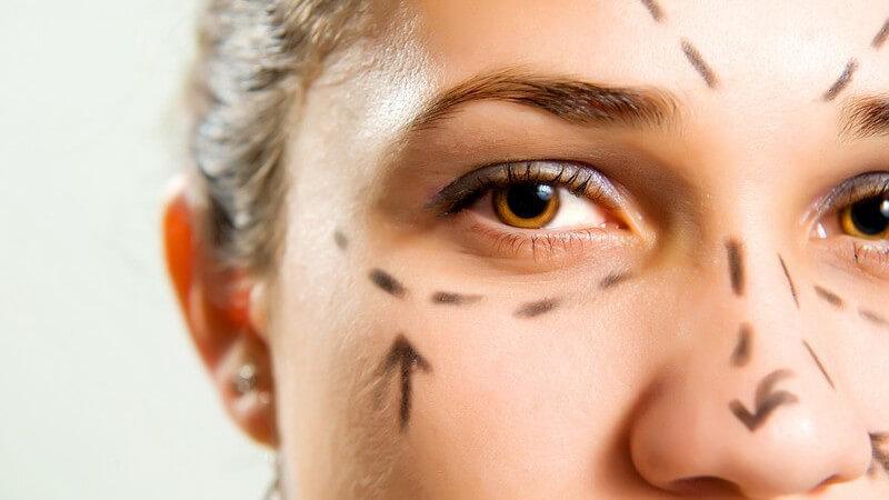 Nase, Augen und Stirn vor Schönheitsoperation mit Stift gekennzeichnet