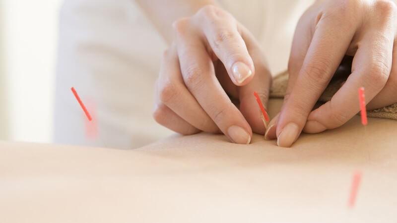 Akupunkteurin platziert rote Akupunkturnadeln auf dem Rücken einer Frau