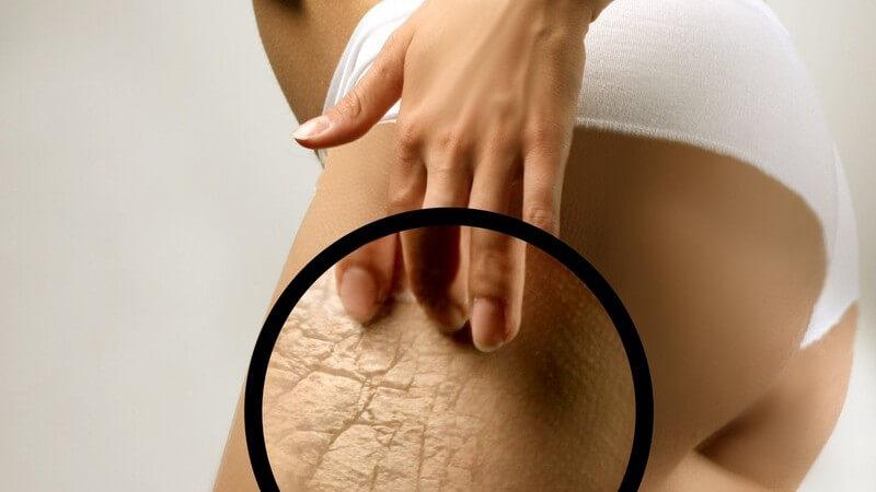 Lupe an weiblichen Oberschenkel, Cellulite