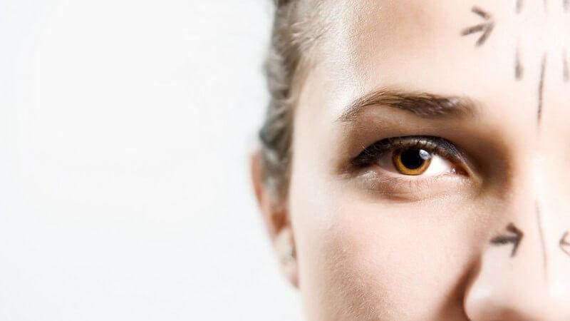 Nase und Stirn vor Schönheitsoperation mit Stift gekennzeichnet