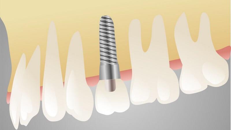 Zeichnung Zähne, Zahnimplantat